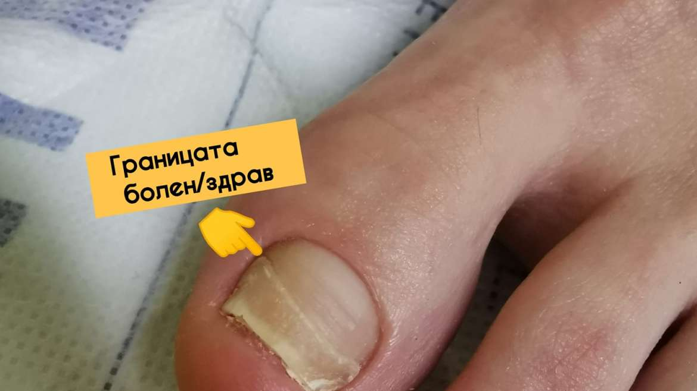 Лечение на гъбички по ноктите