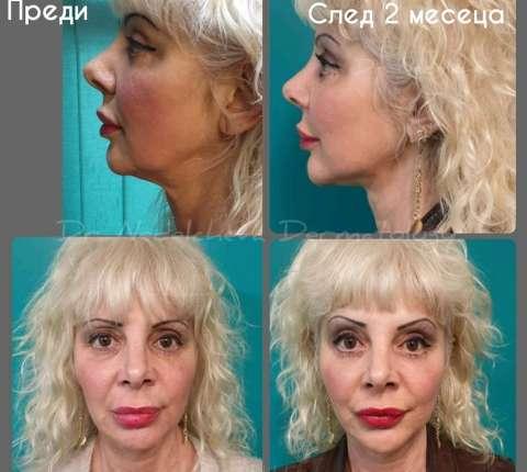 Anti-Age грижата на Д-р Милена Неделчева